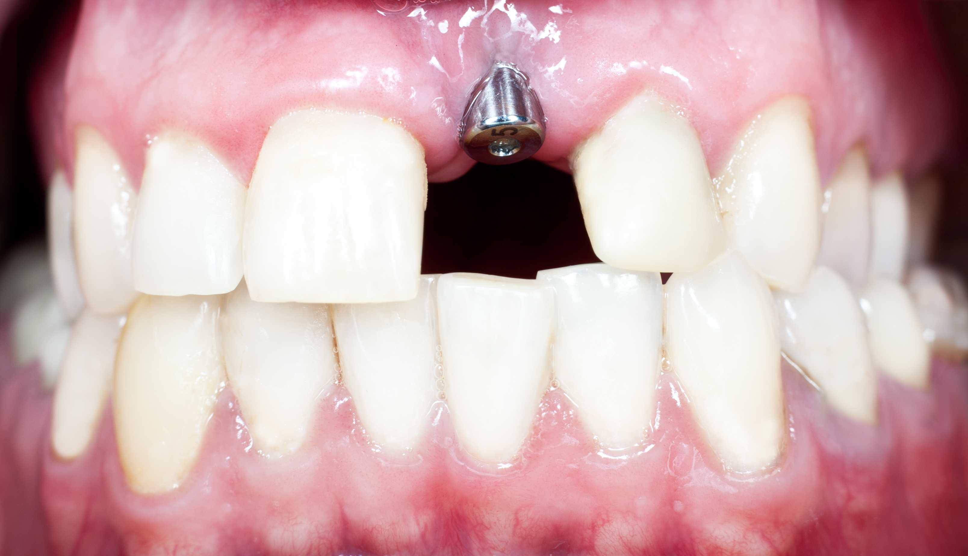 Why oral health needn't end with tooth loss