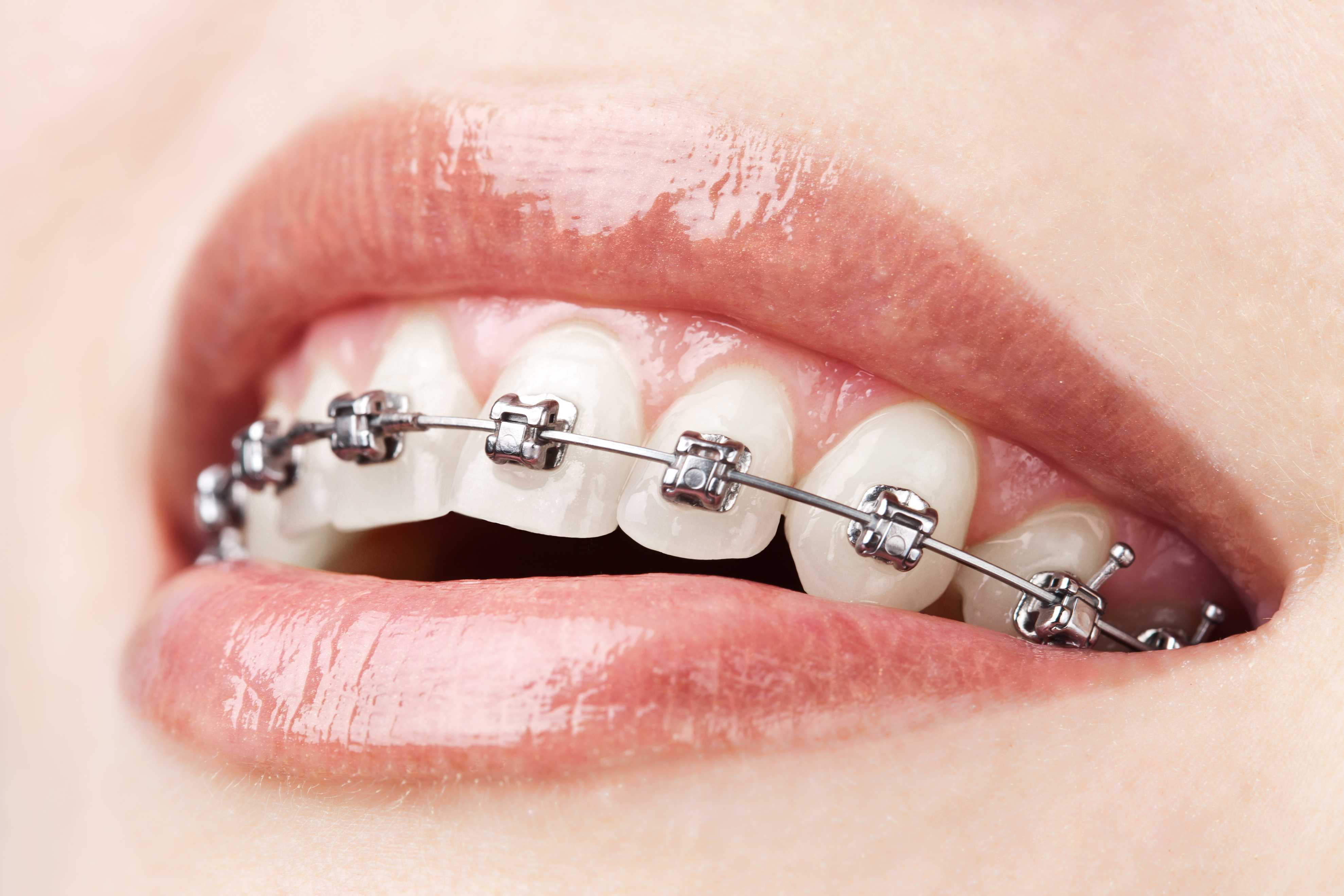 Black Market Braces and Rubber Bands: The DIY Trend