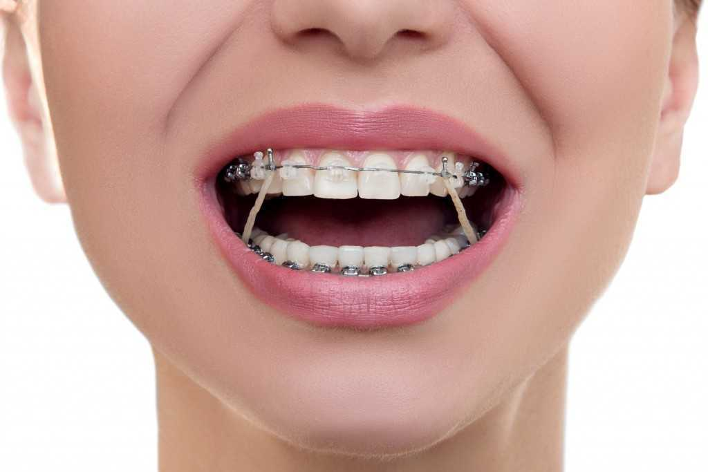 Keeping Your Teeth Straight and Looking Great