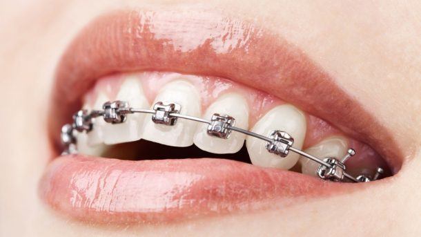 Woman's mouth with braces