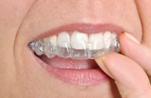 woman attaching her invisalign