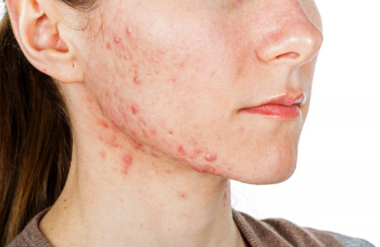 Woman with acne on her jaw