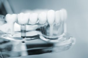 Dental implant model